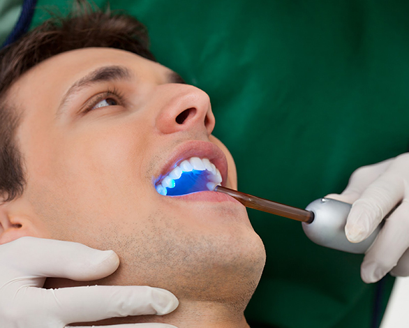 Dental Bonding Doral